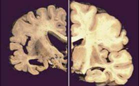 Пищевые добавки с медью повышают вероятность болезни Альцгеймера