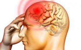 Открыты новые гены, ответственные за мигрени