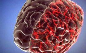 Исследователи рассказали, почему мигрень и операция — опасное сочетание