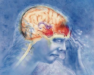 Мигрень не влияет на умственные способности человека