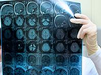 Открытие: сотрясение мозга и болезнь Альцгеймера тесно связаны