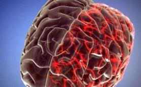 Мигрени можно лечить зарядкой