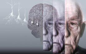 Мозговая травма и болезнь Альцгеймера