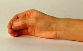 В США появился новый препарат для лечения болезни Паркинсона