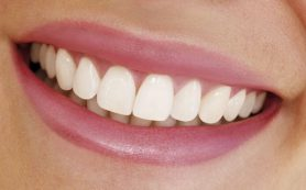 Отбеливание зубов при помощи кислорода