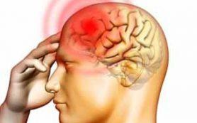 Плоскостопие повышает риск возникновения мигреней