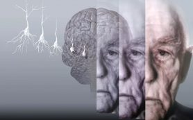 Четыре фактора, которые приводят к болезни Альцгеймера
