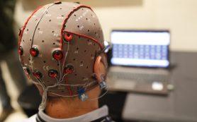 Стимуляция мозга электрическими импульсами может сократить случаи эпилептических припадков