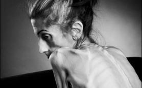 У женщин целиакия связана с риском развития нервной анорексии