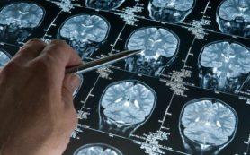 Шизофрению станут лечить стимуляцией мозжечка