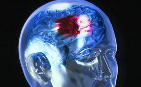 Проверка зрения может предотвратить инсульт