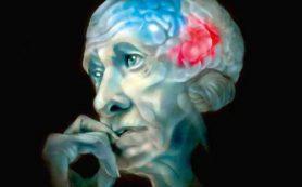 Медные трубы повышают риск возникновения болезни Альцгеймера у людей старше 50 лет