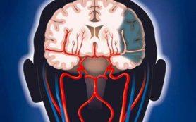 Какие признаки могут указывать на ишемический инсульт