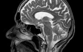 Последствия ушиба мозга