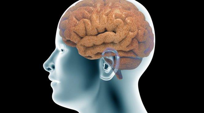 Активный протез изменяет мозговую функцию пациентов, перенесших инсульт