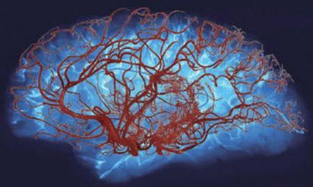 Как улучшить мозговое кровообращение: причины нарушения кровотока