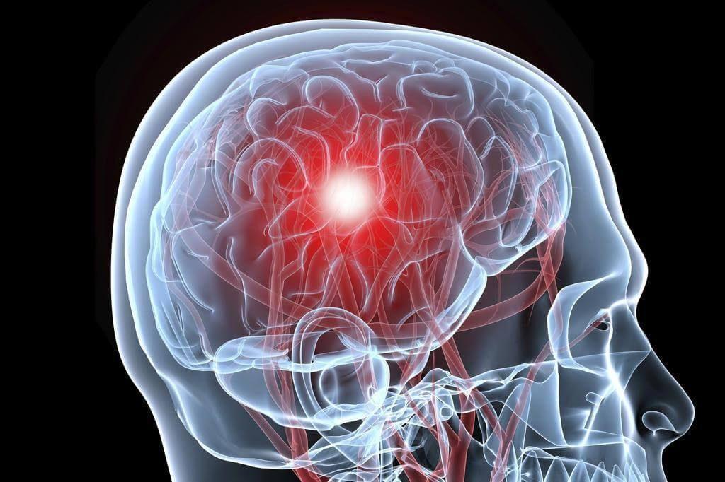 Варианты изменения мышечного тонуса, клиническое значение