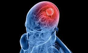 Старение мозга, исследование