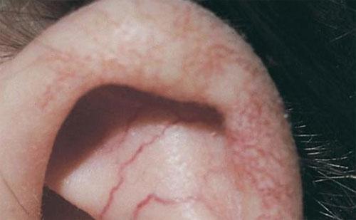 Атаксия-телеангиэктазия (болезнь Луи-Бар)