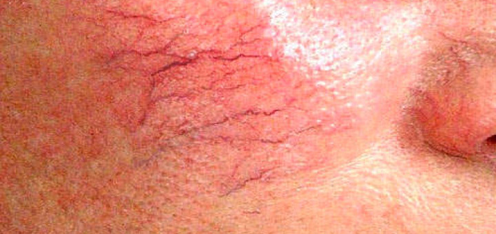 Энцефалотригеминальный ангиоматоз Стерджа—Вебера