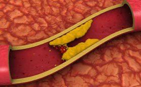 Лекарства, снижающие уровень холестерина, делают женщин агрессивными