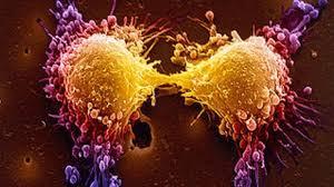 Паранеопластический синдром при раке легкого