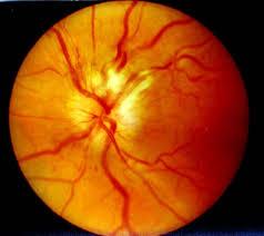 Профилактика неврита зрительного нерва