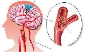 Тромбоз вен головного мозга