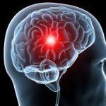 Ученые разработали гидрогель, восстанавливающий мозг после инсульта