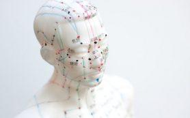 Поможет ли иглоукалывание от мигрени и псориаза: ответ