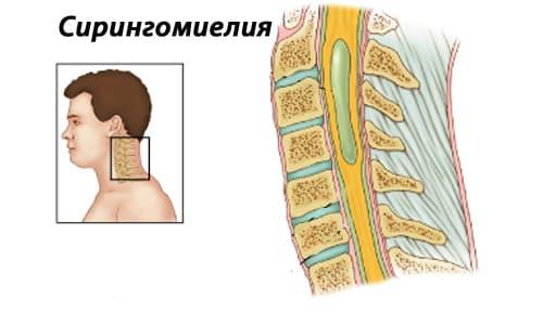 Лечение сирингомиелии