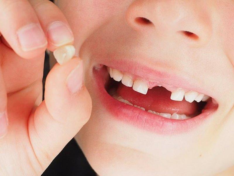 Риск шизофрении и депрессии определят по молочным зубам