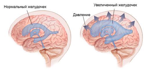 Болезнь Бинсвангера