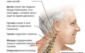 Вертеброгенная цервикалгия