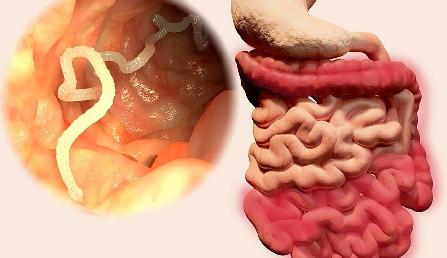 Паразитарное заболевание — описторхоз