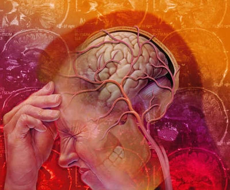 Советы, которые помогут укрепить сосуды головного мозга