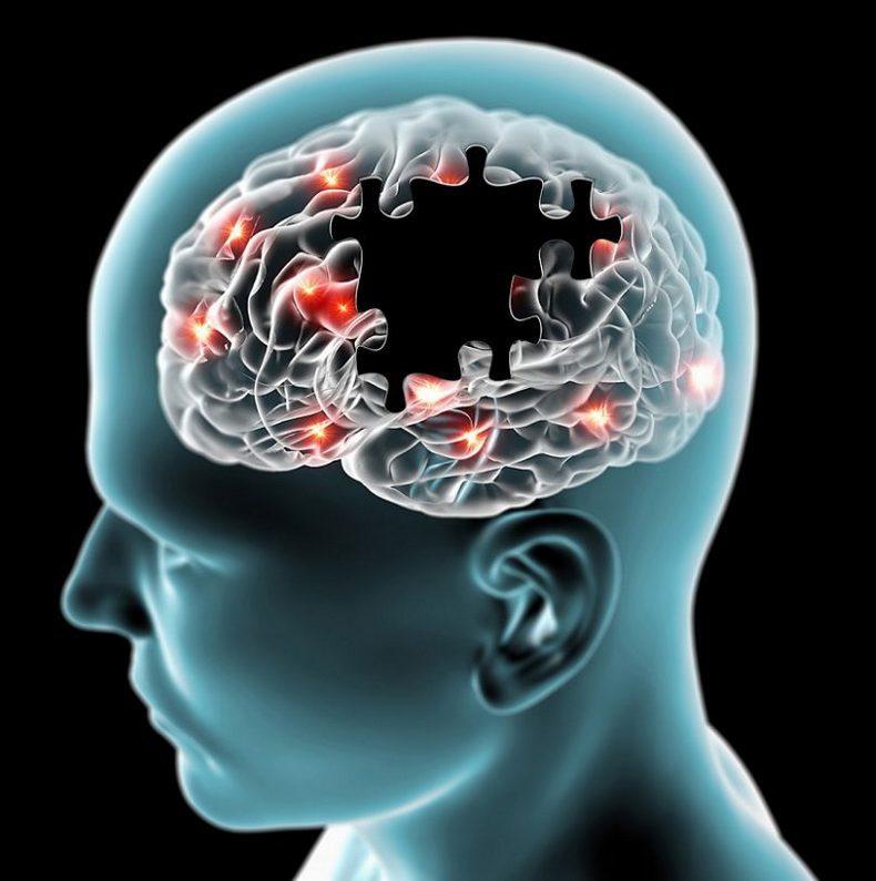 Мигрень, причины, лечение