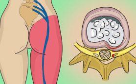 Воспаление седалищного нерва, или как вылечить ишиас
