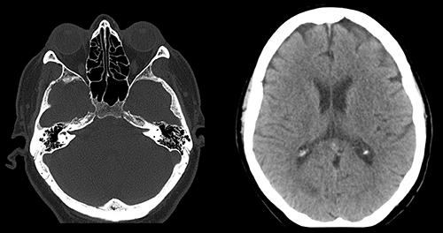 МРТ диагностика оболочки мозга для выявления арахноидита