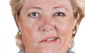 Неврит лицевого нерва – чем опасен и как лечить паралич Белла