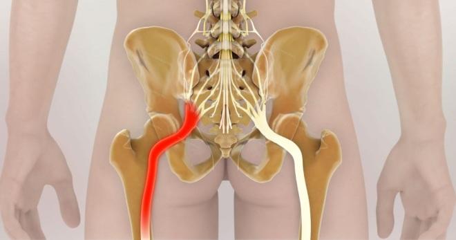 Как лечить защемление седалищного нерва лучшими методами?