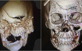 Безупречная пластика дефектов черепа: теперь возможно