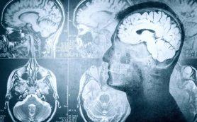 Влияние ожирения на структуру мозга