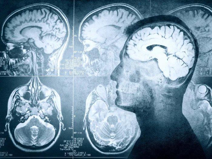 Нужно ли делать МРТ без направления врача и чем это чревато