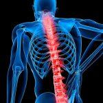 Спинная грыжа – что это такое, причины и последствия, как лечить?