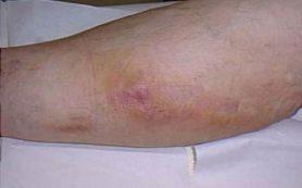 Тромбофлебит – что это за болезнь и чем она опасна?