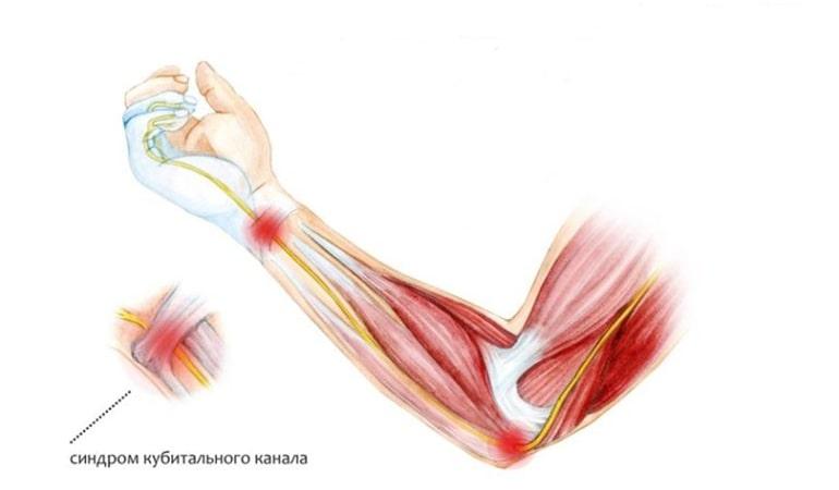 Синдром кубитального канала – как вернуть подвижность руки?