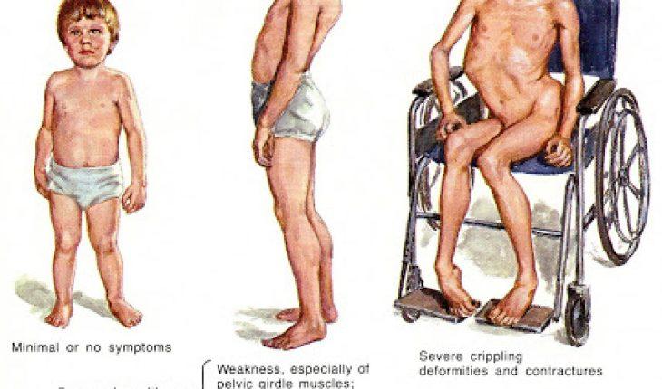 Миопатия — что за диагноз?