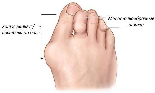 Косточка на большом пальце ноги: причины и лечение