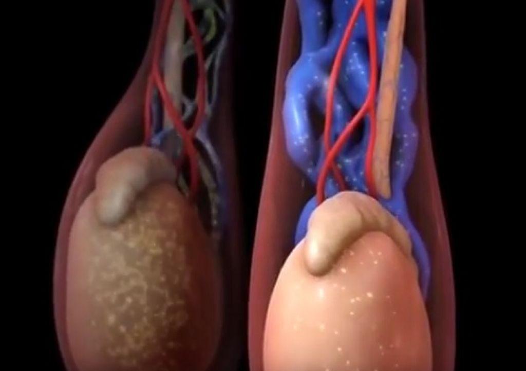 Мениск коленного сустава: виды повреждения, симптомы, этапы лечения